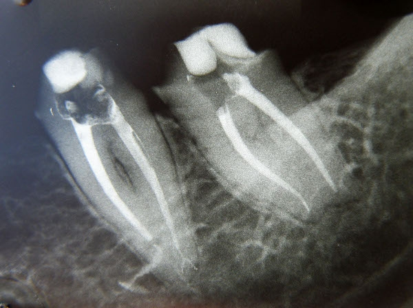 Dr. Francisco   Heredia Casajoana  Endodoncista