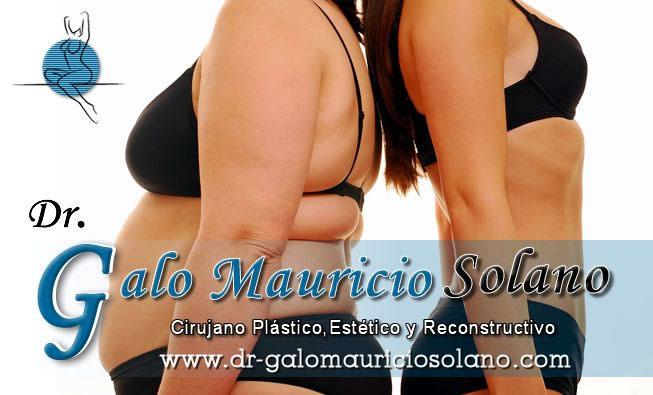 Dr. Galo Mauricio   Solano  Cirujano Plástico Estético y Reconstructivo