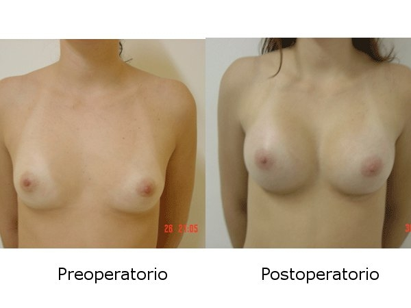 Dr. Galo Mauricio   Solano  Cirujano Plástico