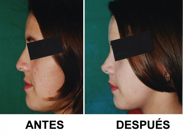 Dr. Gustavo   Salazar  Cirujano Plástico Facial