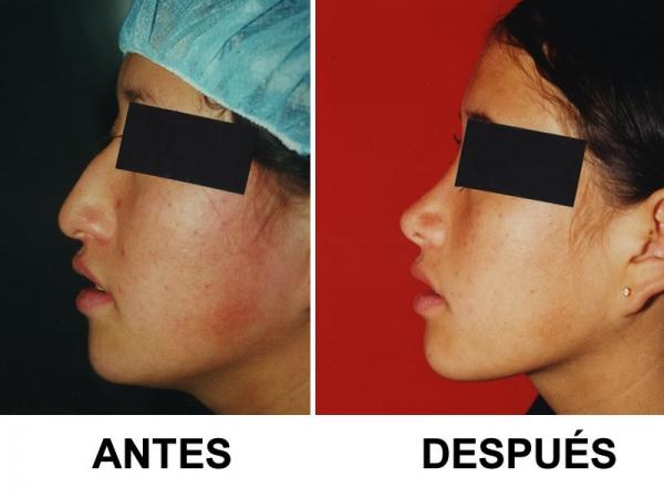 Dr. Gustavo   Salazar  Cirujano Plástico Estético y Reconstructivo