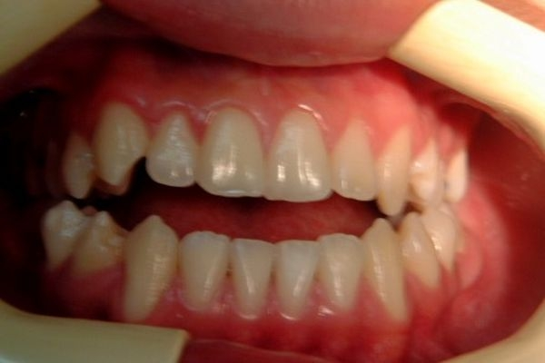 Dr. Raúl   Chumi Teran    Ortodoncista