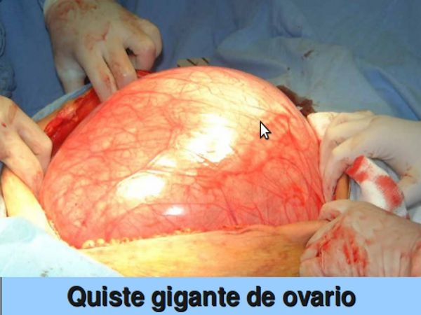 Dr. Jaime   Ulloa Maurat  Cirujano Ginecólogo