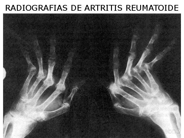 Dr. Jaime   Vintimilla Ugalde  Reumatólogo