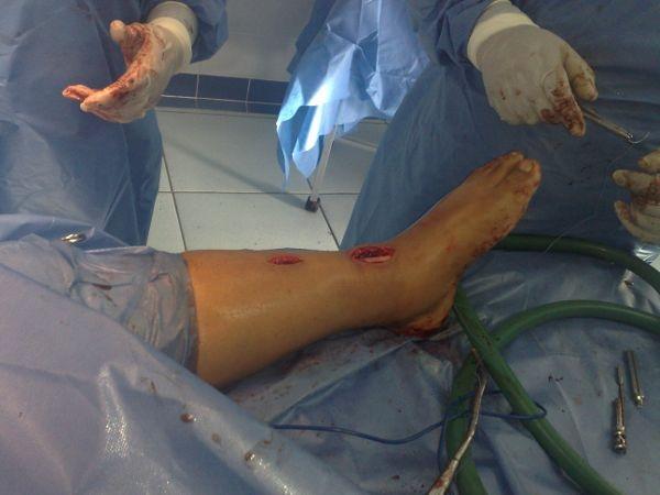 Dr. Mauricio   Pesantez Illescas  Traumatólogo Ortopedista