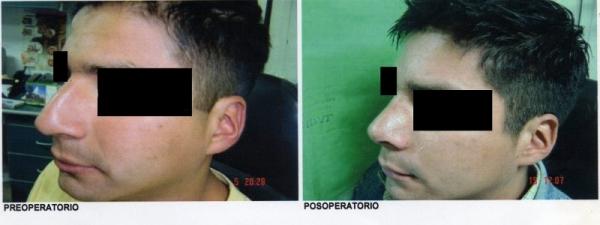 Dr. Francisco   González Argudo  Otorrinolaringólogo