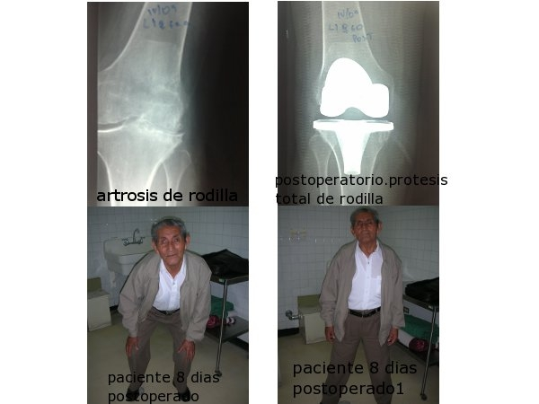 Dr.  Wilson   Muñoz Avilés  Ortopedista Infantil