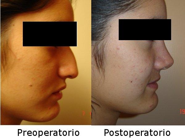 Dra. Mariana   Vásquez García    Cirujana Plástico Facial