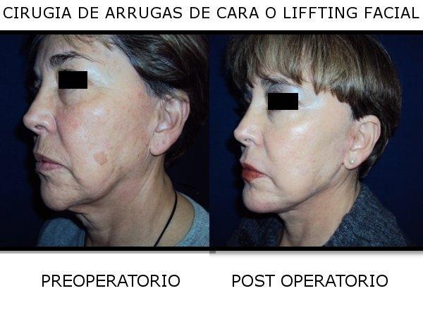 Dr.  Víctor   Salcedo Orellana  Cirujano Plástico