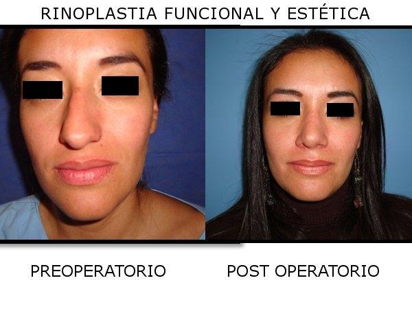 Dr. Víctor   Salcedo Orellana  Cirujano Plastico Craneomaxilofacial