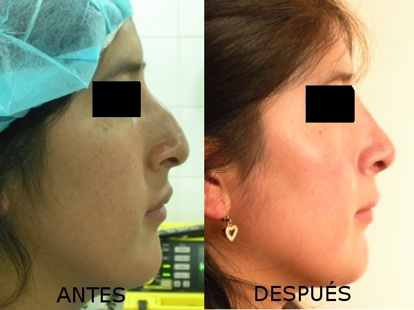 sitio web adulterio facial