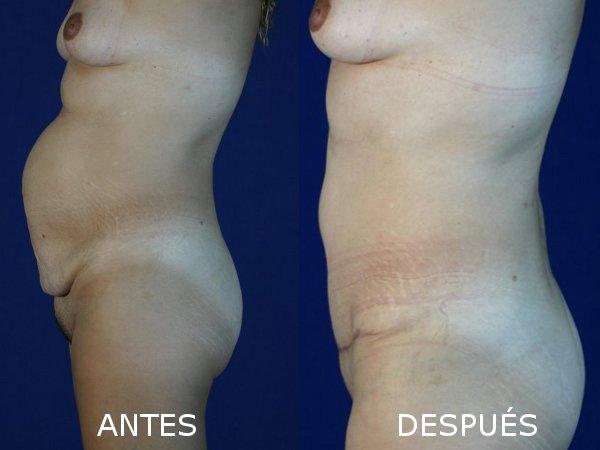 Dr. Cristian   Astudillo Carrera  Cirujano Plástico Estético y Reconstructivo