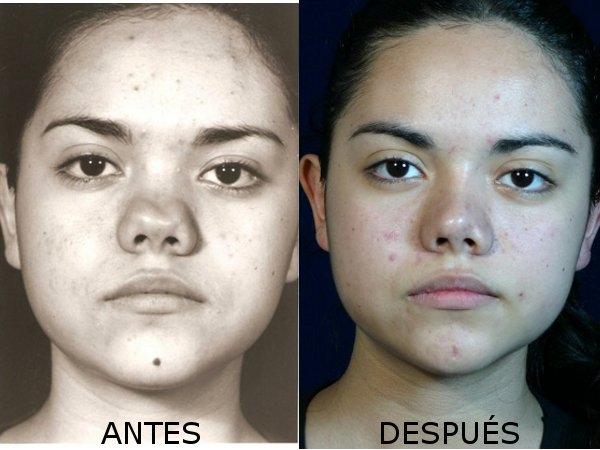 Dr. Cristian   Astudillo Carrera  Cirujano Plástico Facial