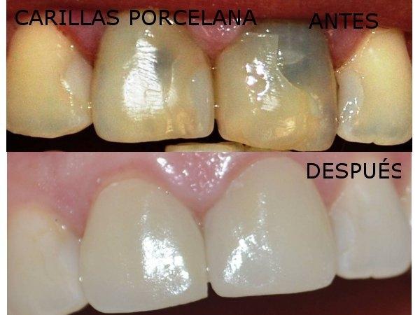 Dr. Wilson   Bravo Torres  Odontólogo
