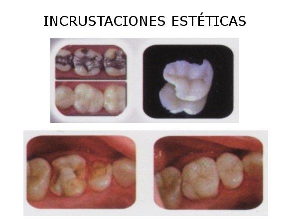 Dr. Santiago   Serrano Piedra  Implantólogo